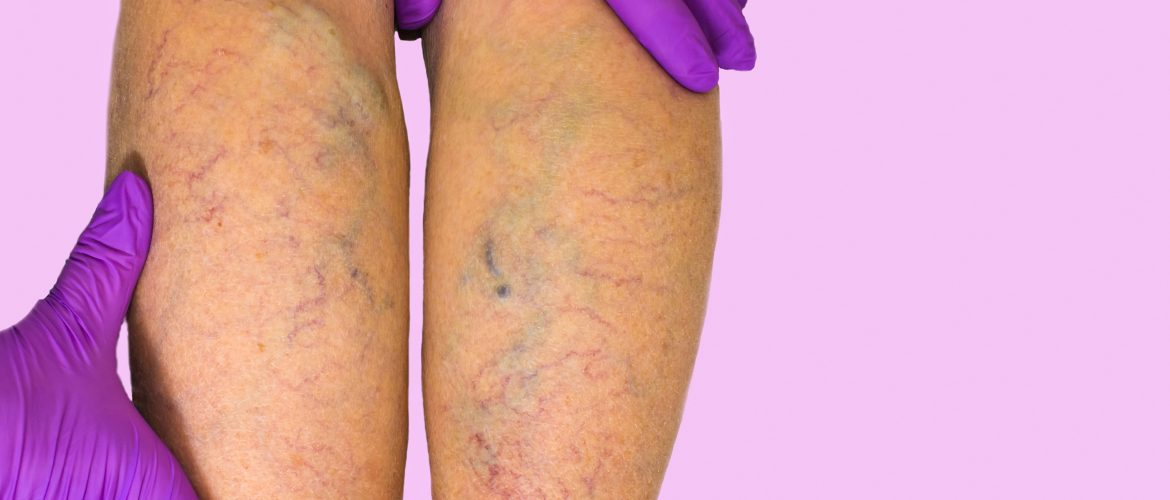 Varicose veins and leg cramps during pregnancy